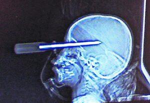 Пьяный водитель воткнул отвёртку в глаз инспектору ДПС