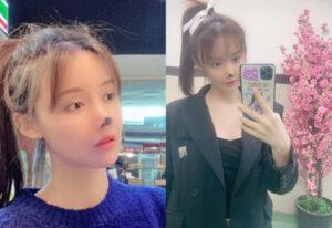 У китайской актрисы после ринопластики начал отмирать нос