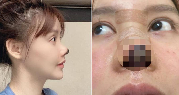 У актрисы отвалился кончик носа после пластической операции
